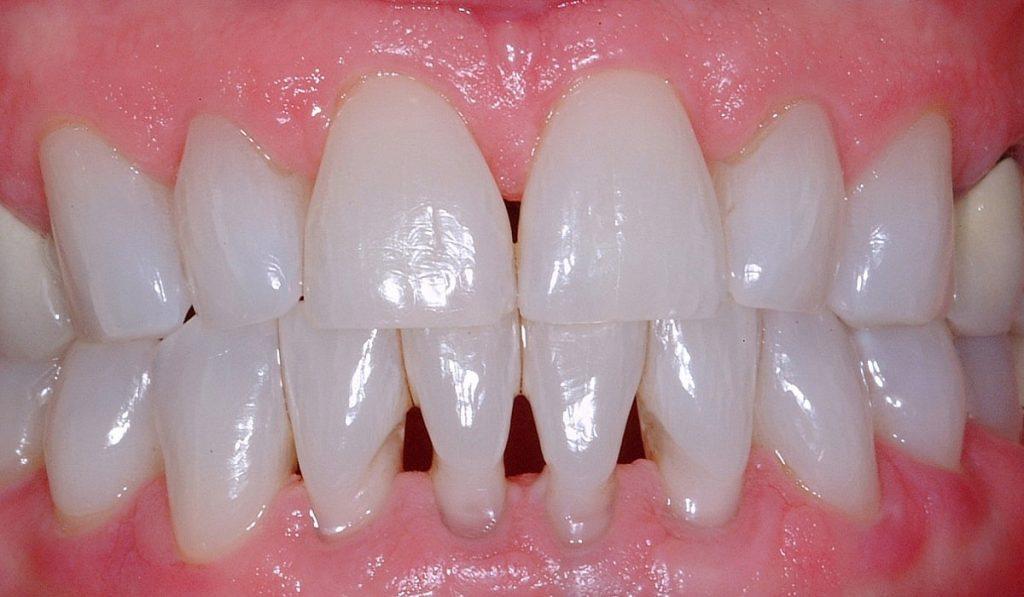 Diş Eti Çekilmesi Nedir? Nedenleri, Belirtileri, Korunma Yolları ve Tedavisi