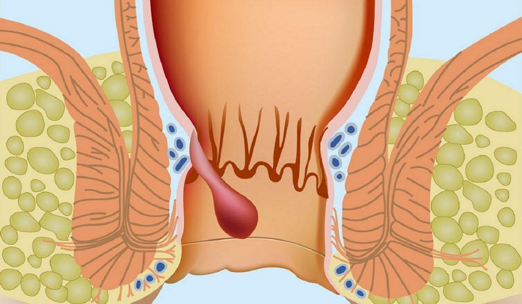 Hemoroid (Basur) Nedir? Nedenleri, Belirtileri, Korunma Yolları ve Tedavisi