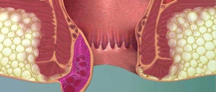Hemoroidin Belirtileri Nelerdir?