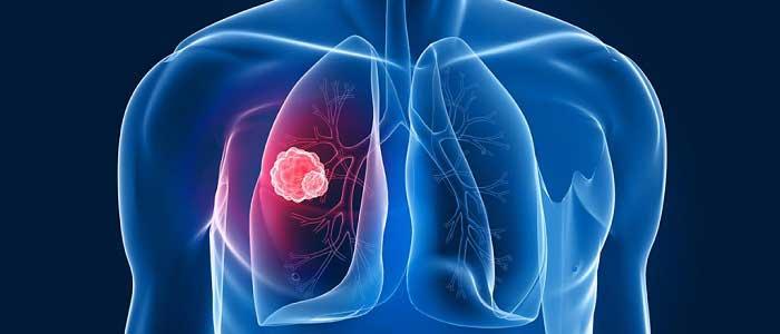 Akciğer Kanserinin Belirtileri Nelerdir?