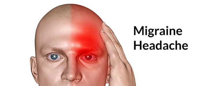 Migrenin Evreleri (Dönemleri)