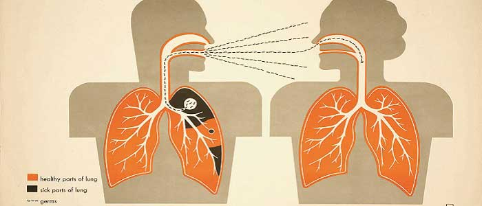 Tüberküloz Nasıl Bulaşır?