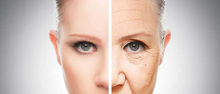 Botox Hangi Durumlarda Uygulanır?