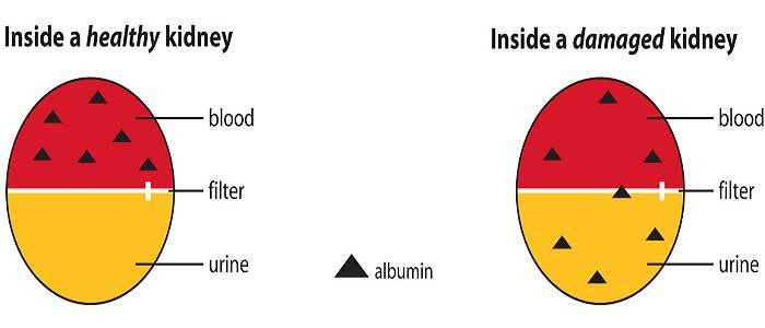 Albümin Hastalığının Nedenleri Nelerdir?