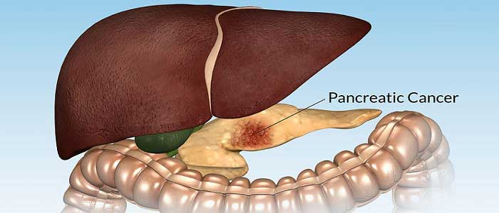 What are the Types of Pancreatic Cancer?