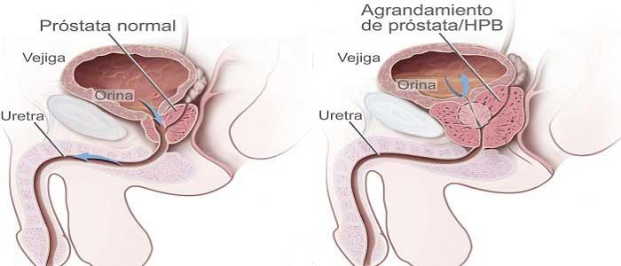 Prostat Kanseri Nedir?