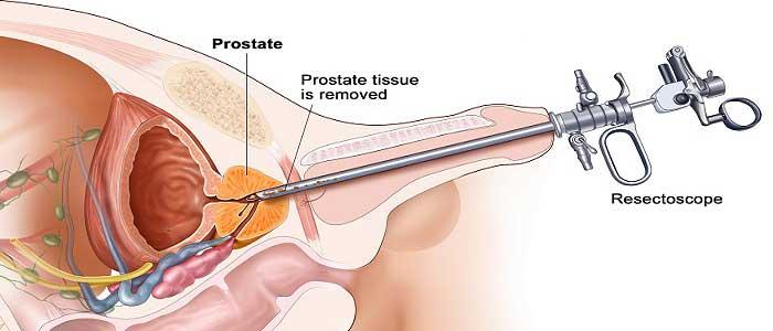 Prostat Kanserinin Tedavisi Nedir?