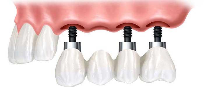 Protez Diş Çeşitleri Nelerdir?