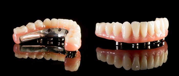 Protez Diş (Diş Protezi) Nedir?