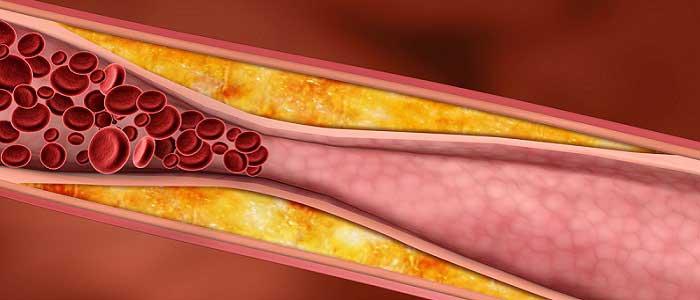 Damar Tıkanıklığı (Ateroskleroz) Nedir?