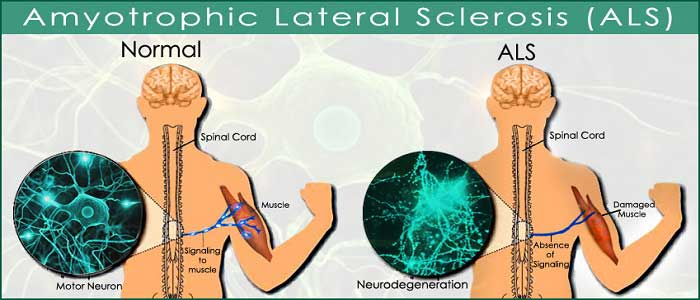 ALS (Amyotrofik Lateral Skleroz) Hastalığı Nedir?