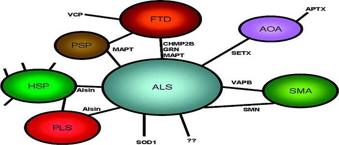 ALS Hastalığının Tedavisi Nedir?