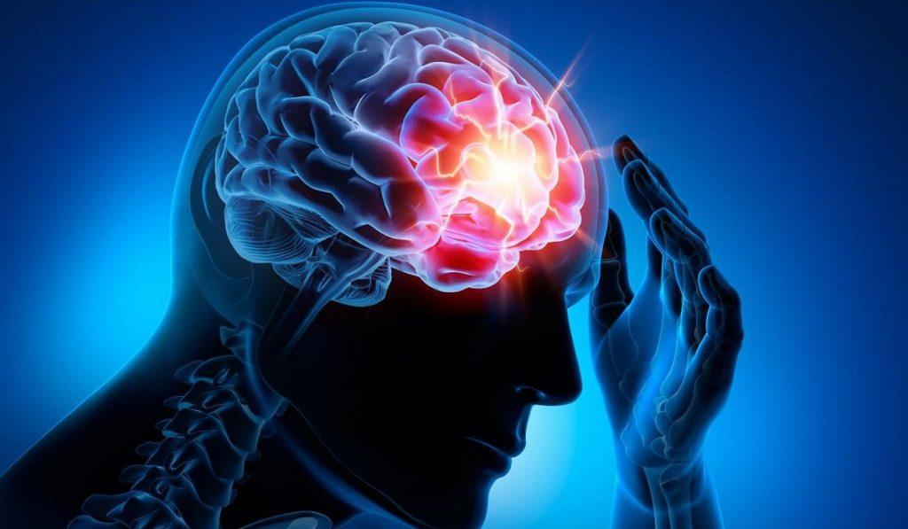 Epilepsi (Sara) Hastalığı Nedir? Nedenleri, Belirtileri, Korunma Yolları ve Tedavisi