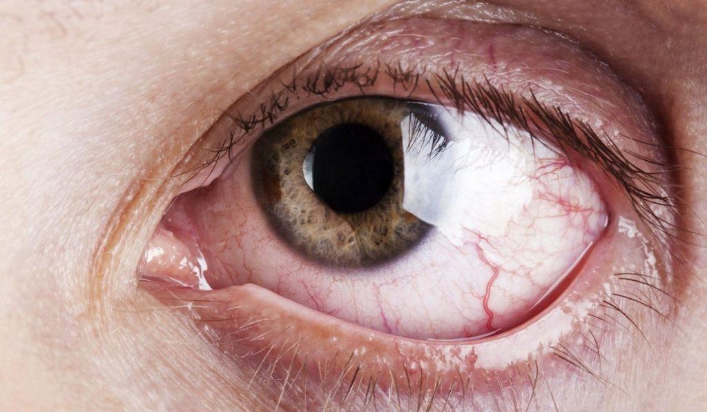 Alerjik Konjonktivit Nedir? Nedenleri, Belirtileri, Korunma Yolları ve Tedavisi