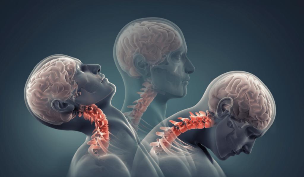 Boyun Düzleşmesi Nedir? Nedenleri, Belirtileri, Korunma Yolları ve Tedavisi