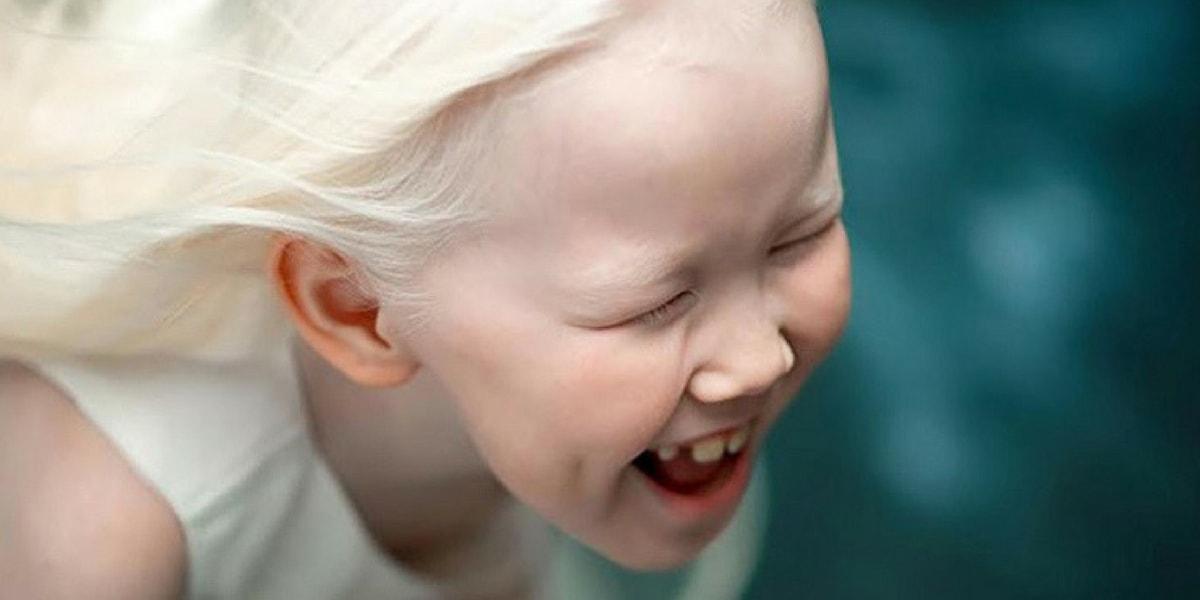 Albinizm (Albino) Hakkında Bilinmesi Gereken Önemli Detaylar