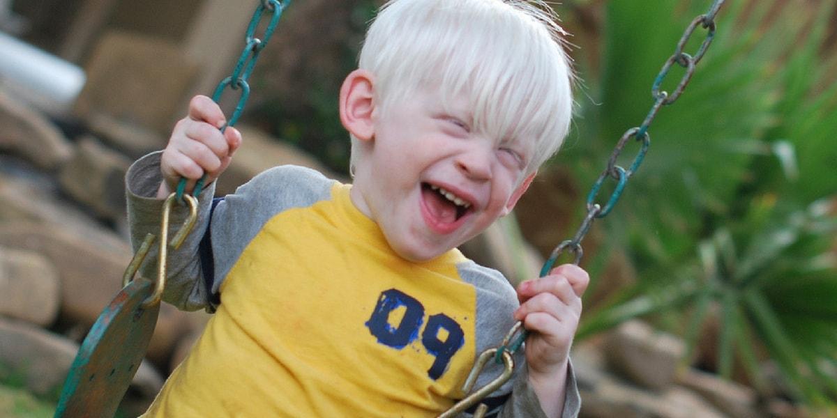 Albinizm (Albino) Nedenleri Nelerdir?