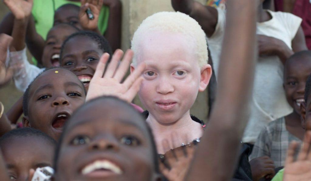 Albinizm (Albinoluk) Nedir? Nedenleri, Belirtileri, Korunma Yolları ve Tedavisi