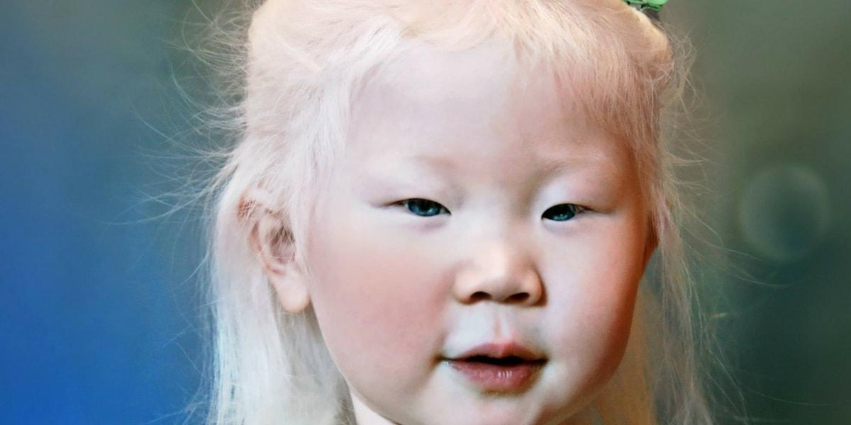 Albinizim (Albino) Nedir?