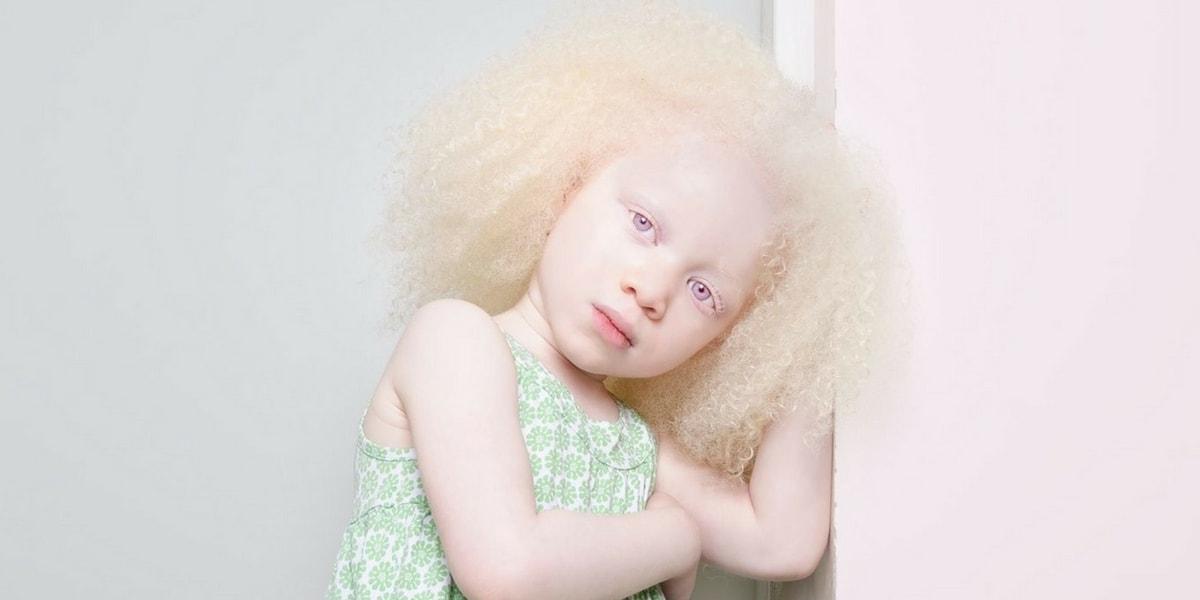 Albinizim (Albino) Tedavisi Nasıldır?