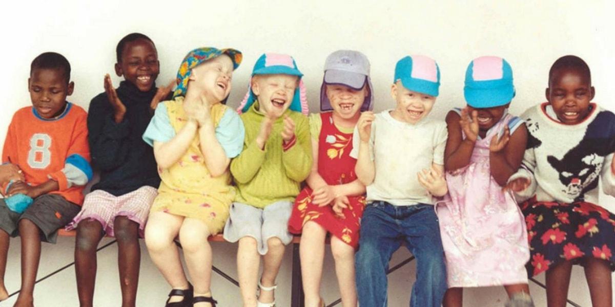 Albinizimden(Albino) Korunma Yolları Nelerdir?