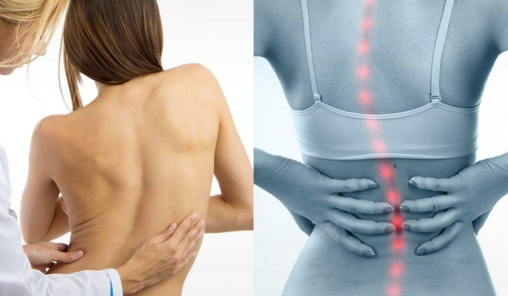 Skolyoz Hastalığı (Omurga Eğriliği) Nedir? Nedenleri, Belirtileri, Korunma Yolları ve Tedavisi
