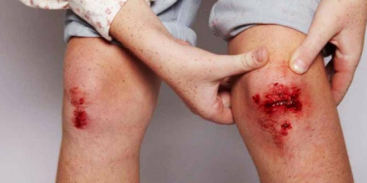 Hemofili Hastalığından Korunma Yolları Nelerdir?
