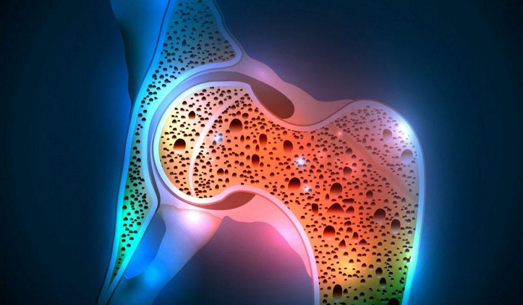 Kemik Erimesi (Osteoporoz) Nedir? Nedenleri, Belirtileri, Korunma Yolları ve Tedavisi