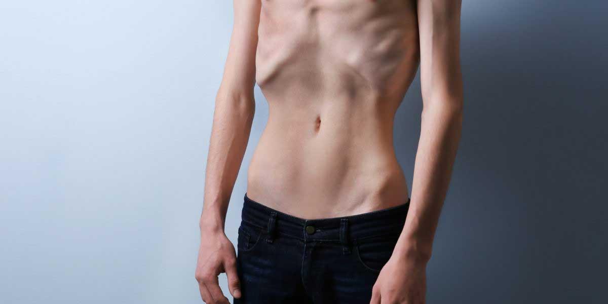Anoreksiya Nervoza Nedenleri Nelerdir?